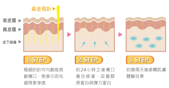 黃金飛針,皮膚構造,丰緹絲,丰緹絲診所,台北醫美