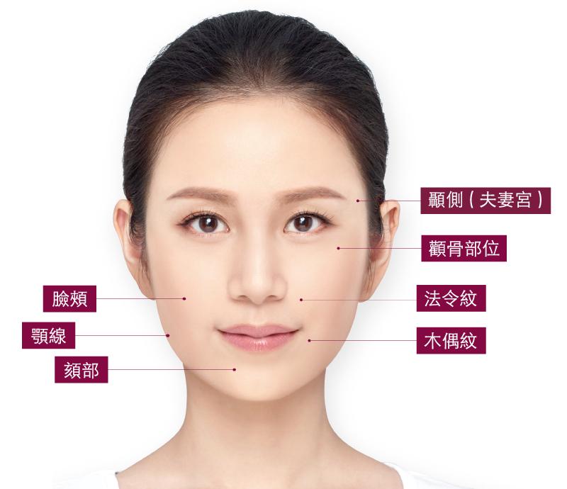 舒顏萃,3D聚左旋乳酸,微整形,台北醫美,東區,丰緹絲診所