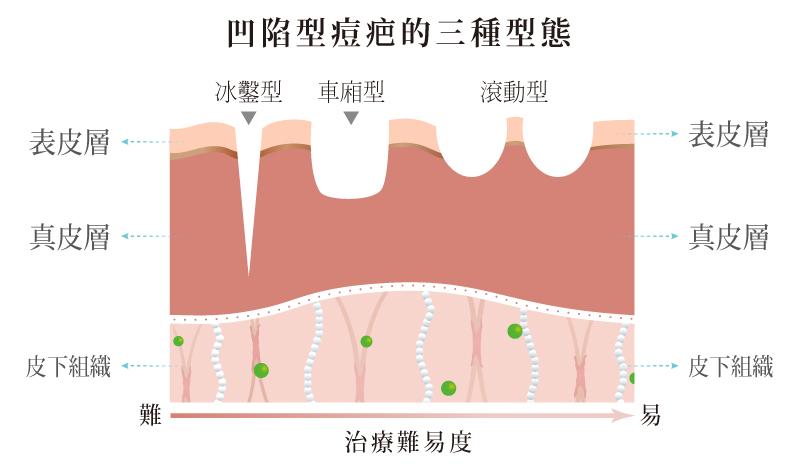 飛梭,台北醫美,痘疤型態,除疤,凹疤,丰緹絲,丰緹絲診所