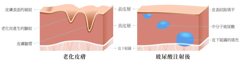 玻尿酸,肌膚構造,丰緹絲,丰緹絲診所,台北醫美,東區