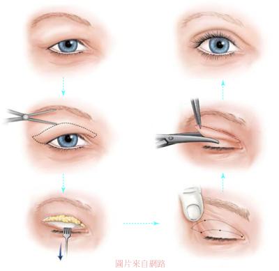 雙眼皮手術-3