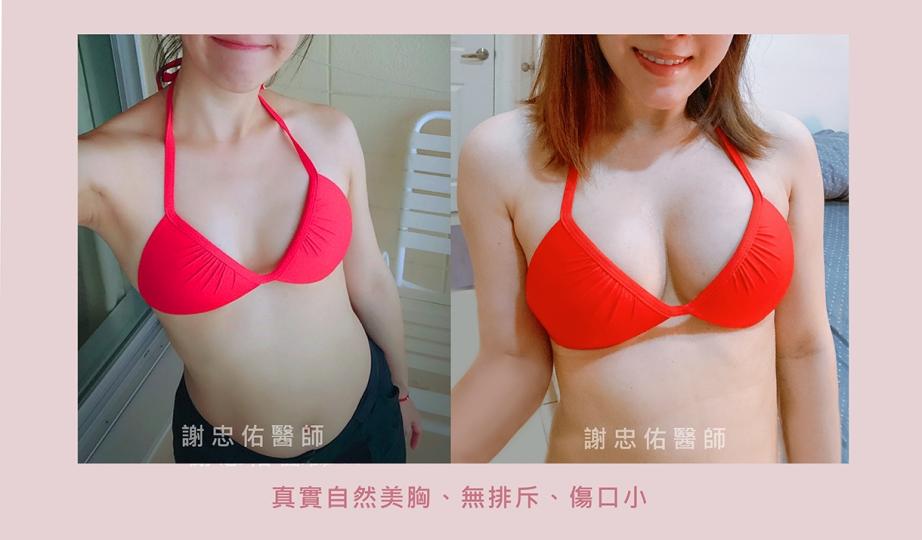 0610FB自體隆乳_工作區域 1