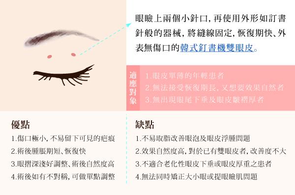 雙眼皮手術-內文圖-釘書機-0217