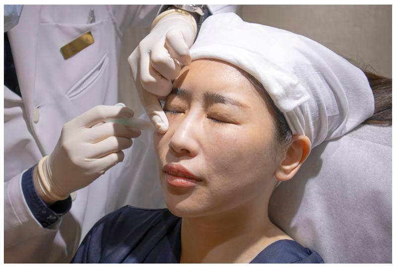 緁希,玻尿酸,黑眼圈,丰緹絲,丰緹絲診所,台北醫美