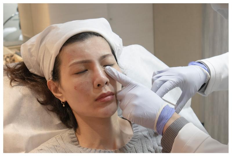 Ainslee,4D皮秒,雷射,玻尿酸,淚溝,丰提絲診所,台北醫美