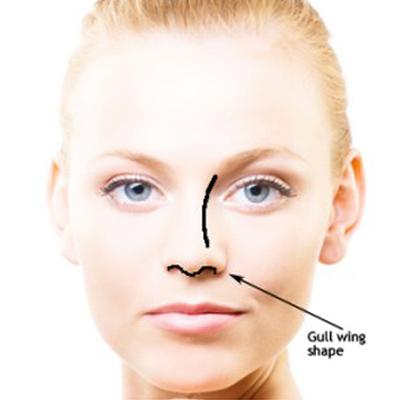 鼻整形,鼻子,手術,骨架,丰緹絲,丰緹絲診所