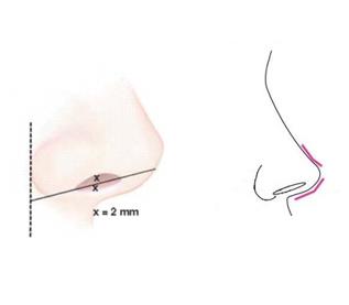 鼻整形,鼻子,手術,鼻孔,丰緹絲,丰緹絲診所