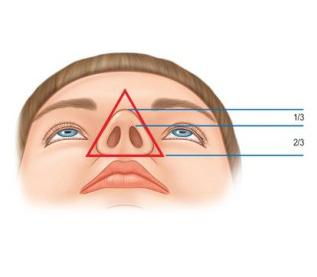 鼻整形,鼻子,手術,角度,丰緹絲,丰緹絲診所